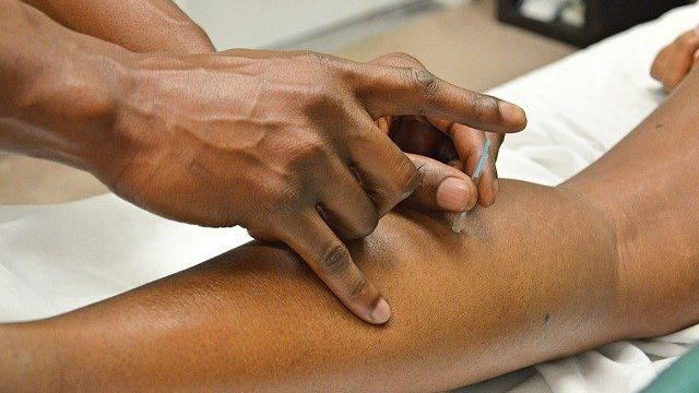 Is Acupuncture For Shoulder Pain Really That Effective? Here's Our Verdict